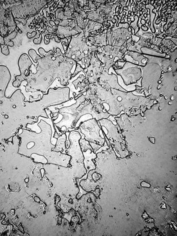 Tears Under A Microscope