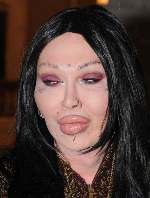 plastic surgery gone wrong 14