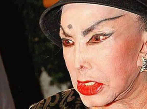 plastic surgery gone wrong 5