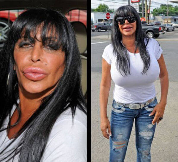 plastic surgery gone wrong 31