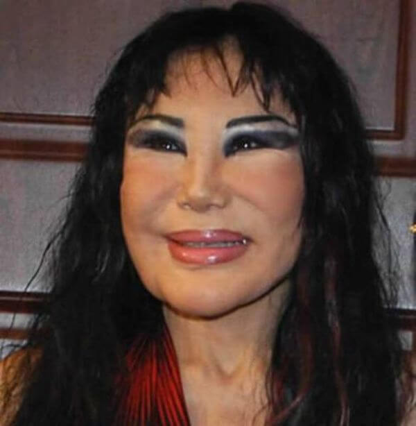 plastic surgery gone wrong 1