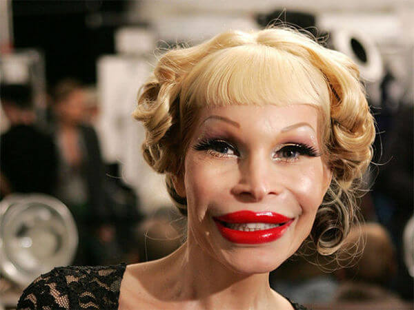 plastic surgery fails 20