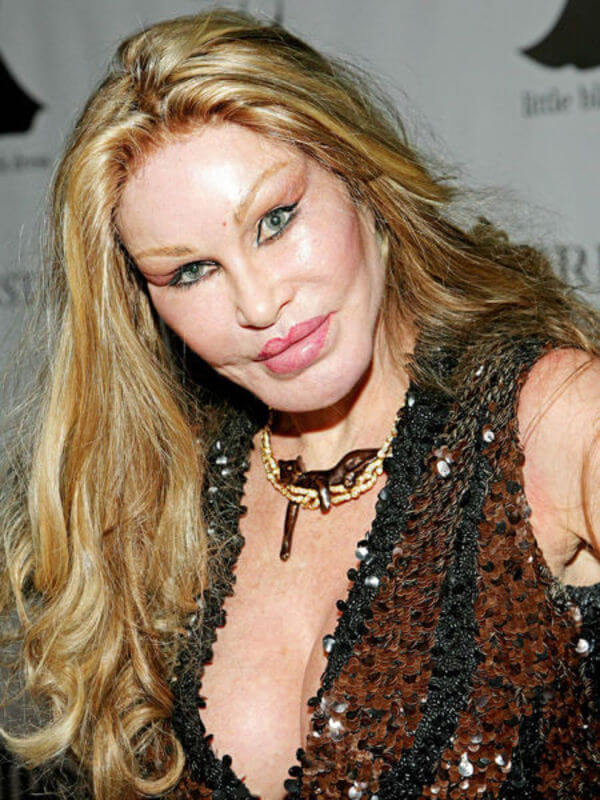 plastic surgery bad results 8