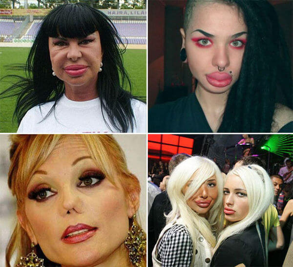 plastic surgery bad results 16