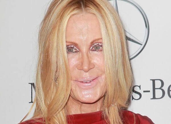 plastic surgery fails 23