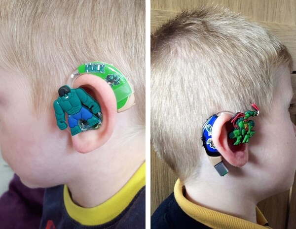 custom hearing aid 1
