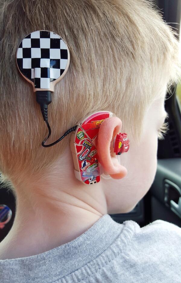 custom hearing aid 2