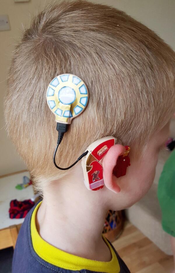 custom hearing aid 4