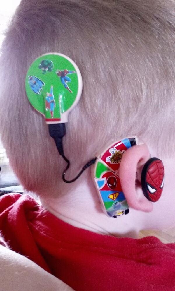 custom hearing aid 7
