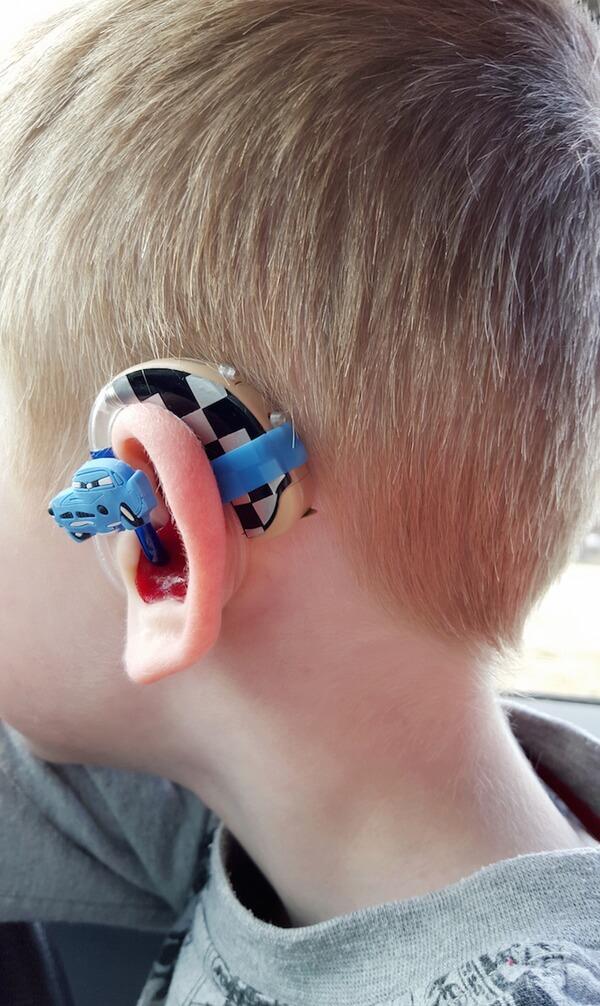 custom hearing aid 9