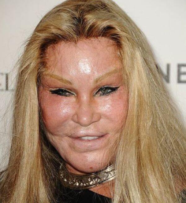 plastic surgery fails 19