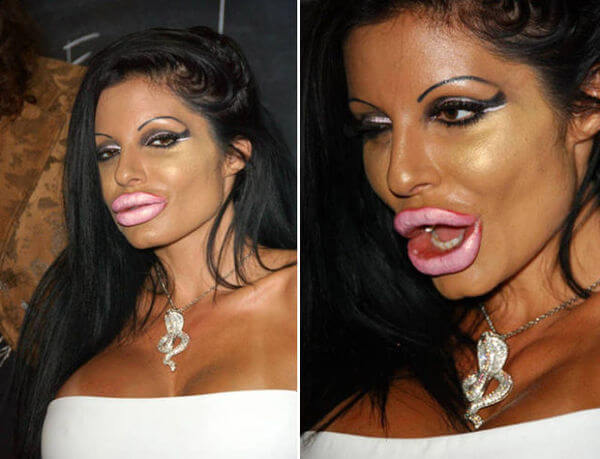 plastic surgery bad results 17
