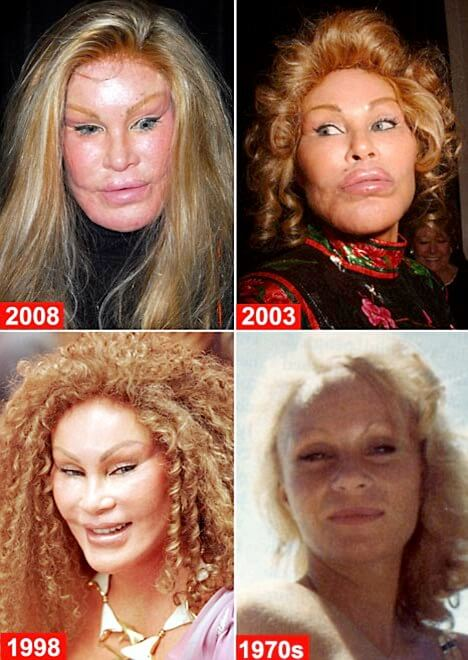 plastic surgery gone wrong (1)