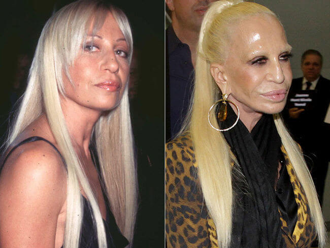 plastic surgery bad results 7 (1)