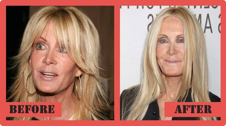 plastic surgery bad results 8 (1)
