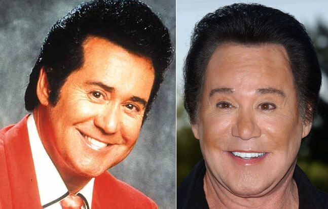 plastic surgery bad results 9 (1)