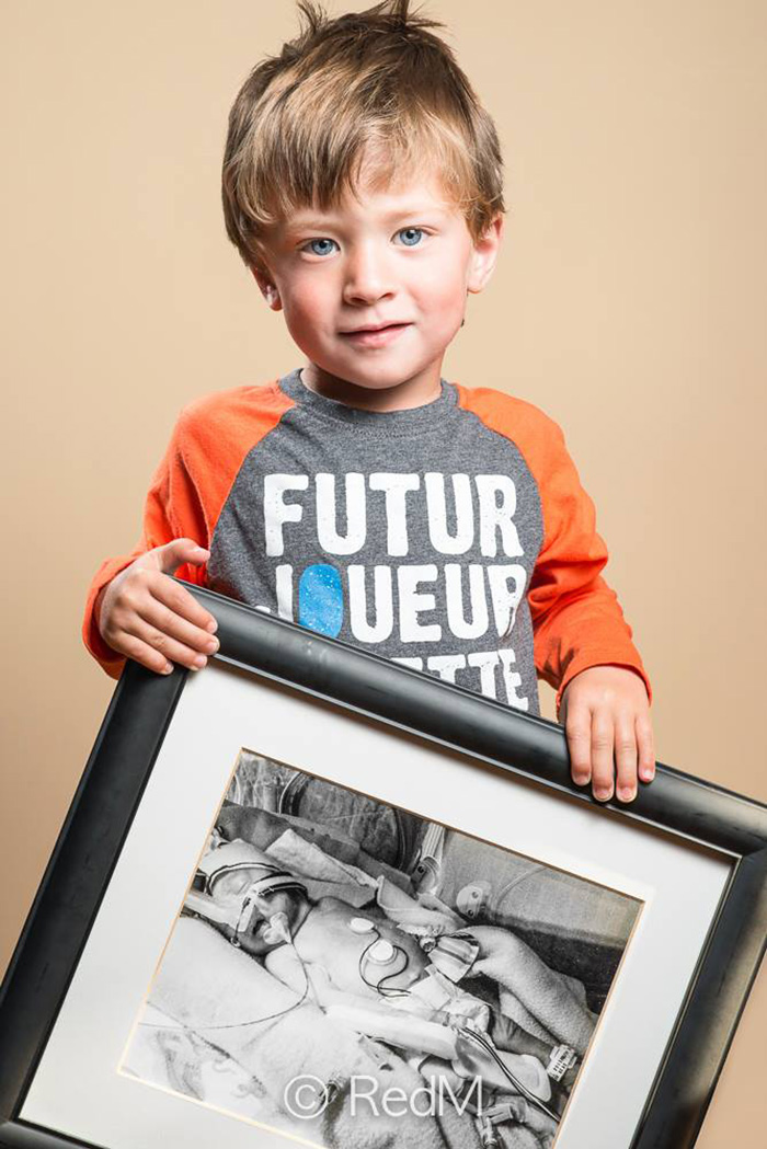 Portraits Of Premature Babies 3