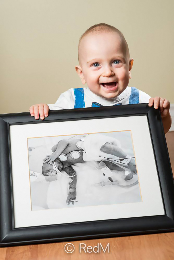 Portraits Of Premature Babies 4