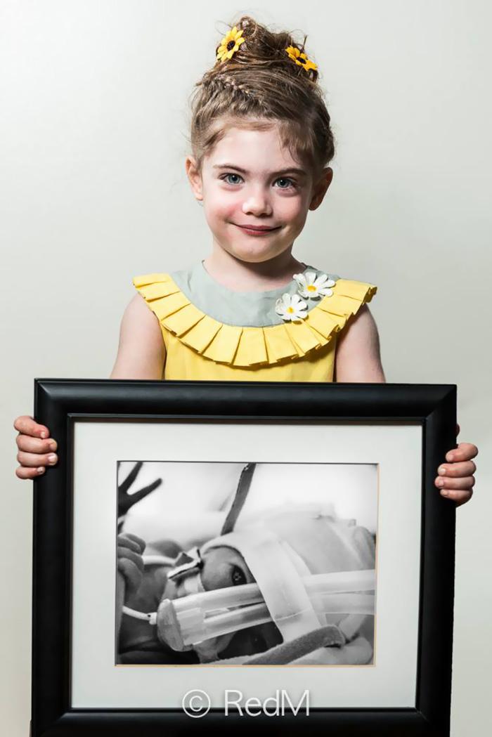 Portraits Of Premature Babies 7