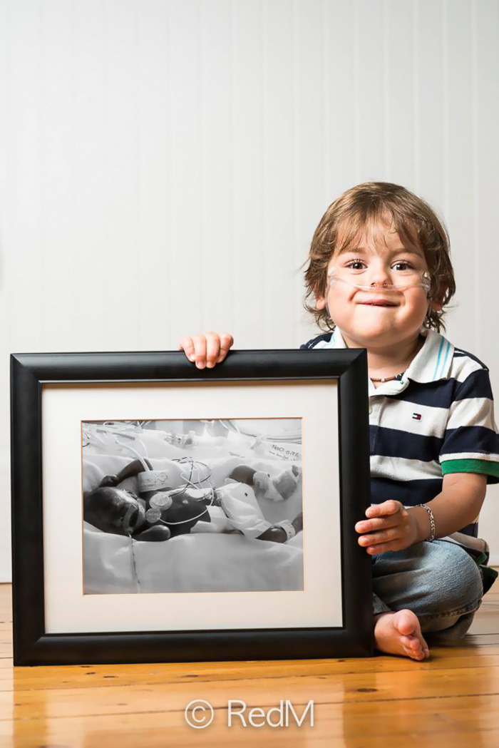 Portraits Of Premature Babies 9