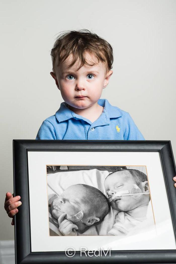 Portraits Of Premature Babies 10