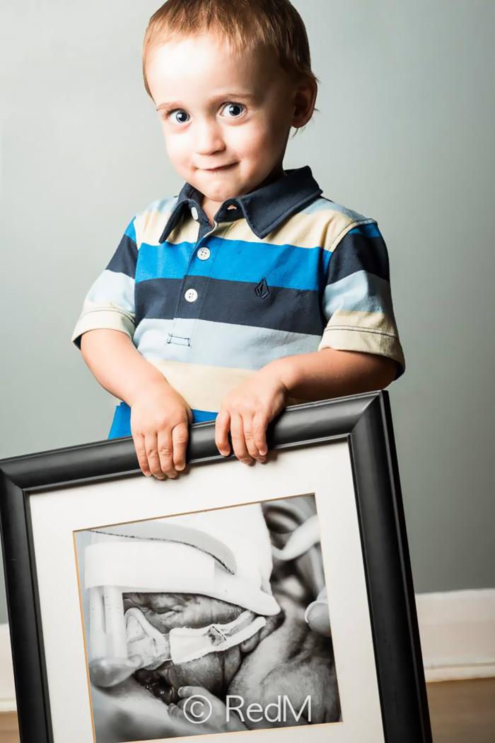 Portraits Of Premature Babies 12
