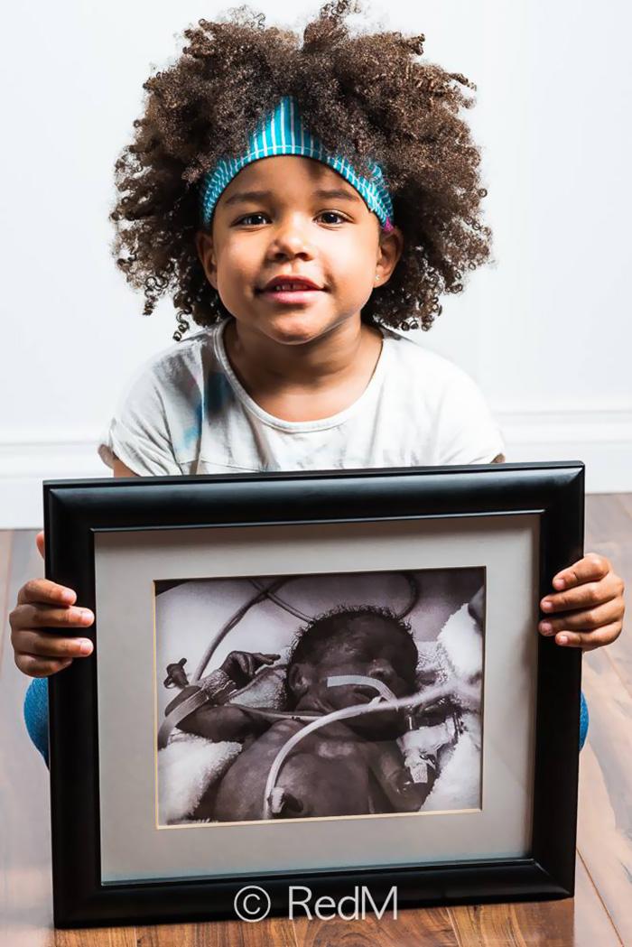 Portraits Of Premature Babies 13