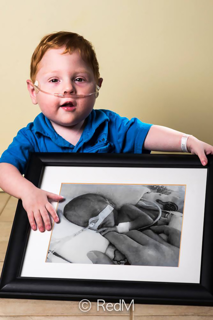 Portraits Of Premature Babies 14