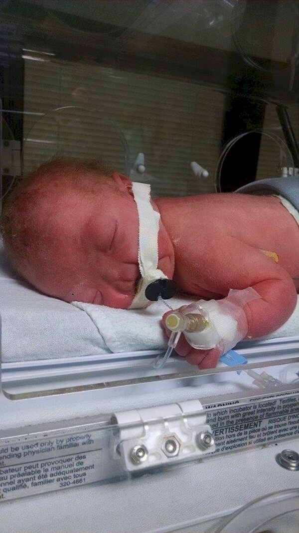 baby born with no nose 3
