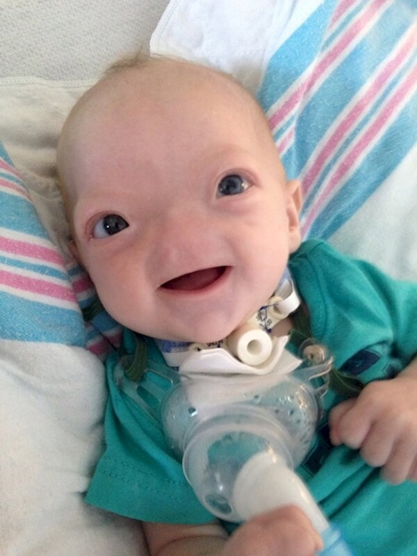 baby born with no nose 7