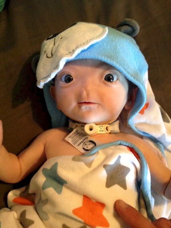 baby born with no nose 14