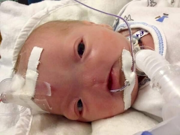 baby born with no nose 2