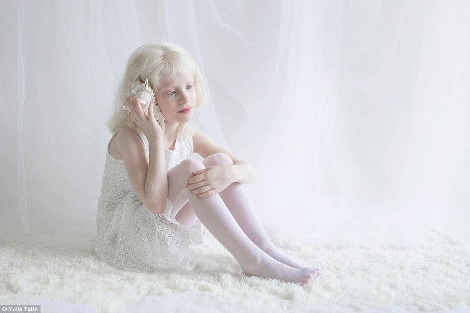 albinos portraits by yulia taits (1)