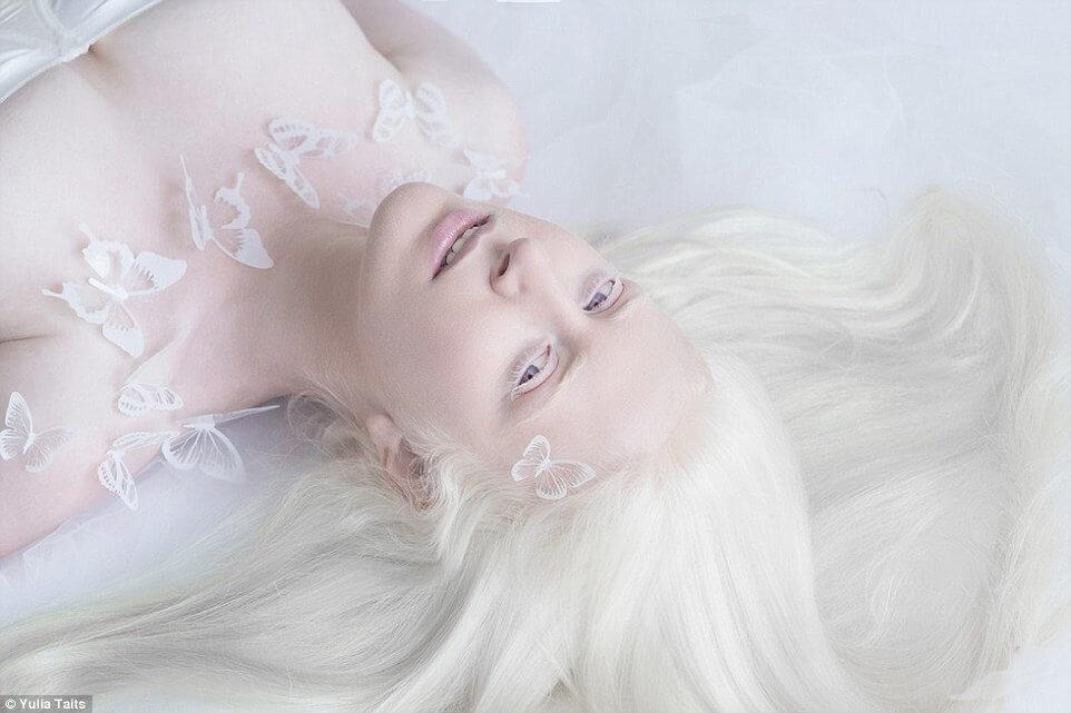 albinos portraits by yulia taits 2 (1)