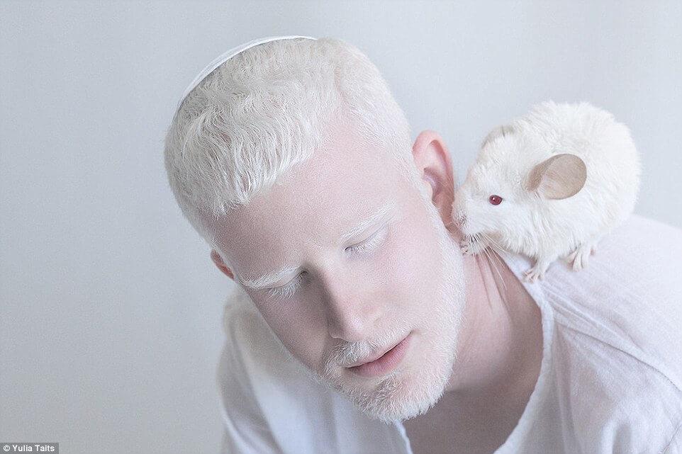 albinos portraits by yulia taits 3 (1)