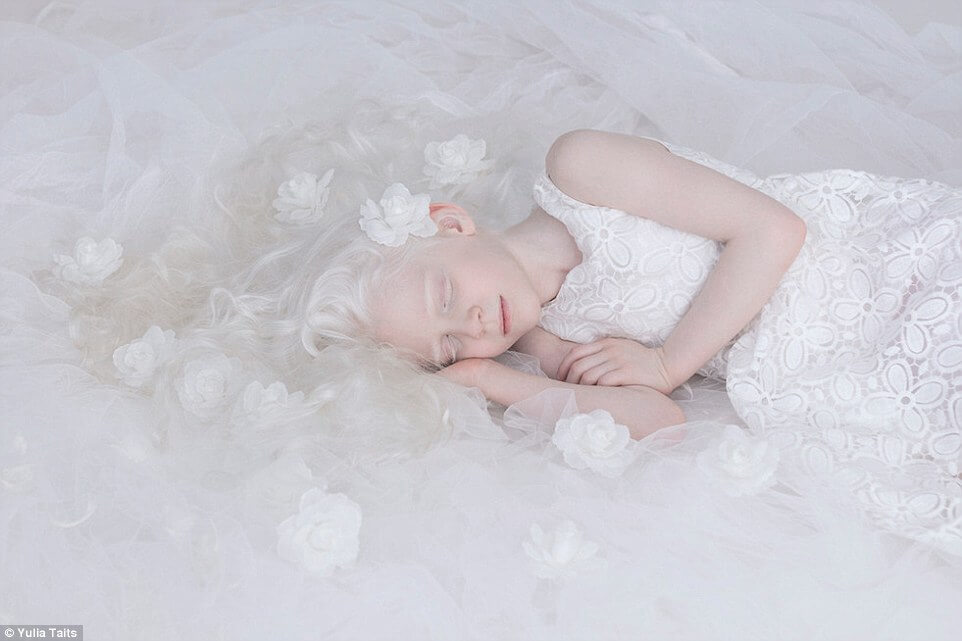 albinos portraits by yulia taits 6 (1)