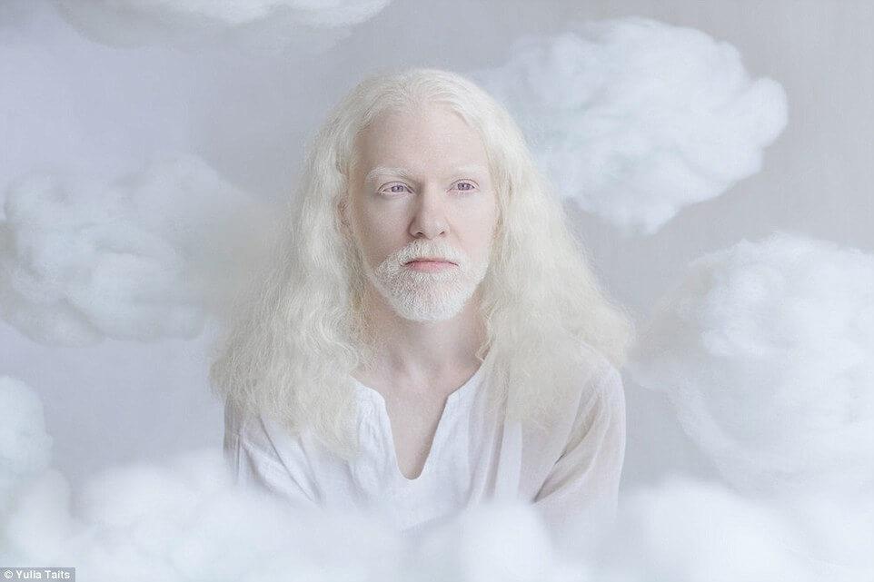 albinos portraits by yulia taits 7 (1)