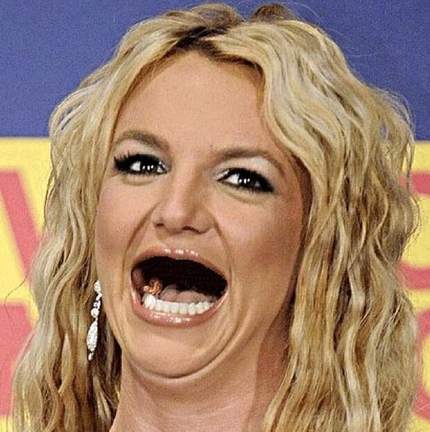 celebrities without teeth 13 (1)