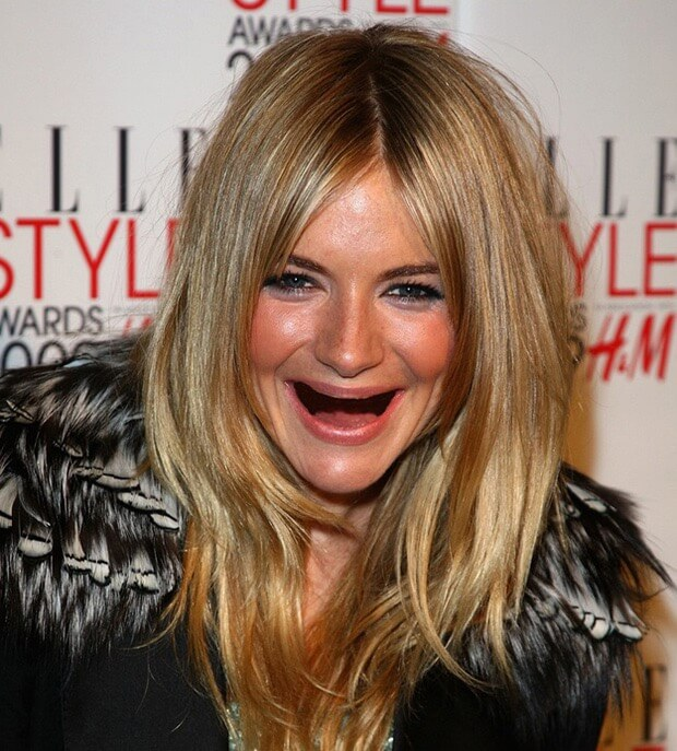 celebrities without teeth 15 (1)