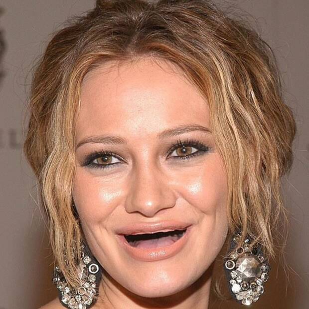 23 Lol Pictures Of Celebrities Without Teeth That Will