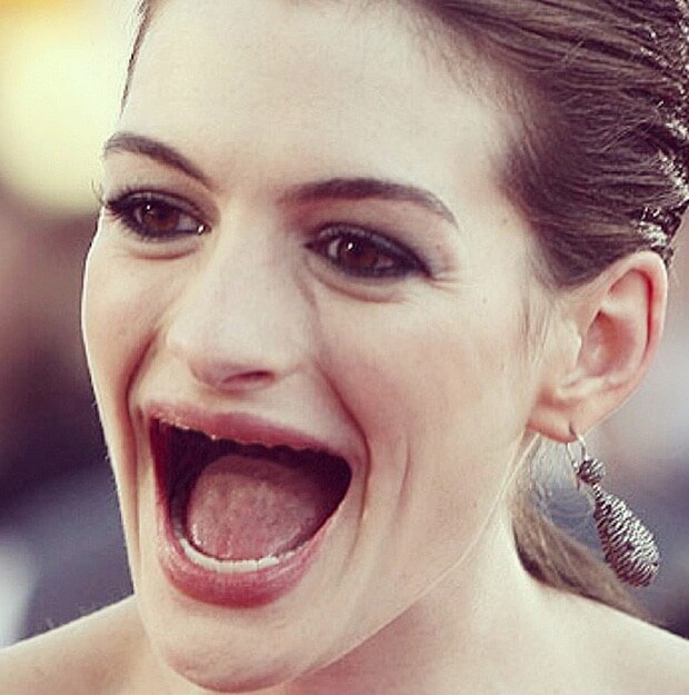 celebrities with no teeth 17 (1)