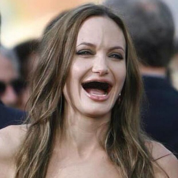 celebrities without teeth 2 (1)