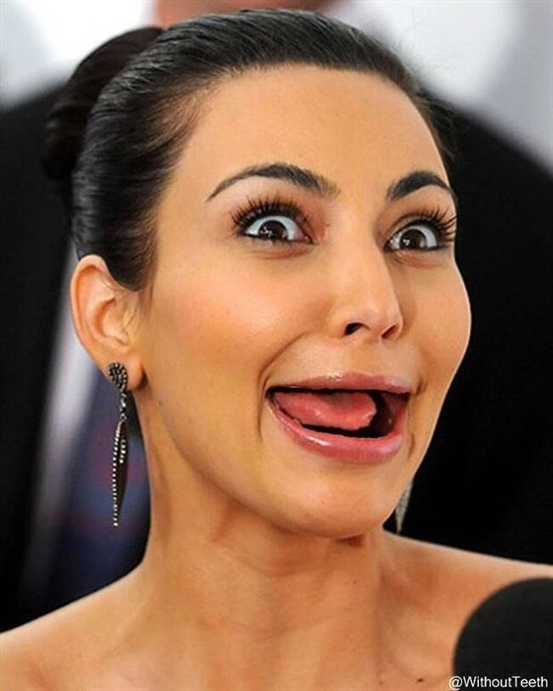celebrities with no teeth 22 (1)