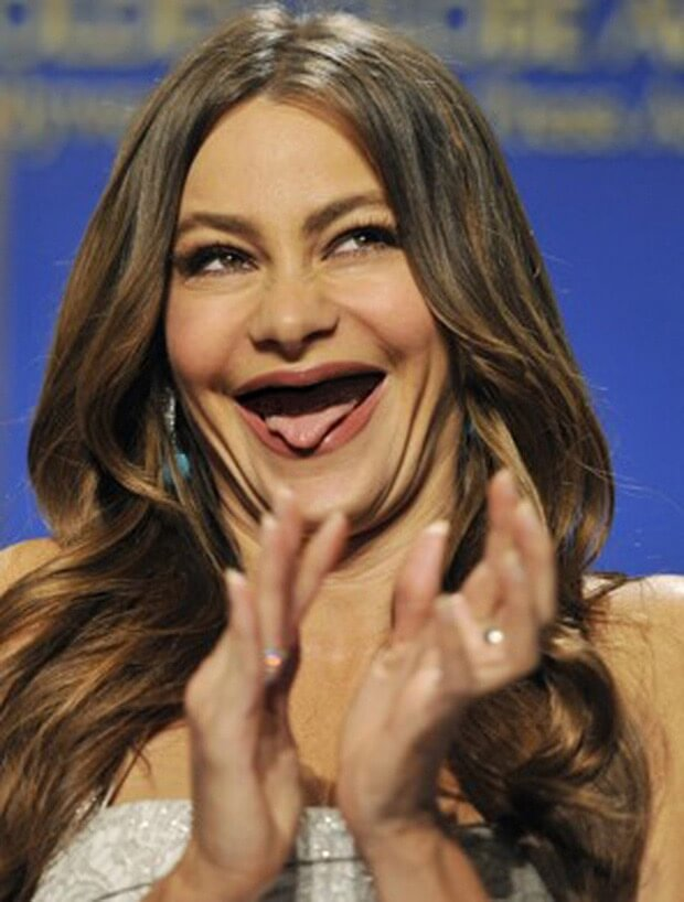 celebrities without teeth 24 (1)