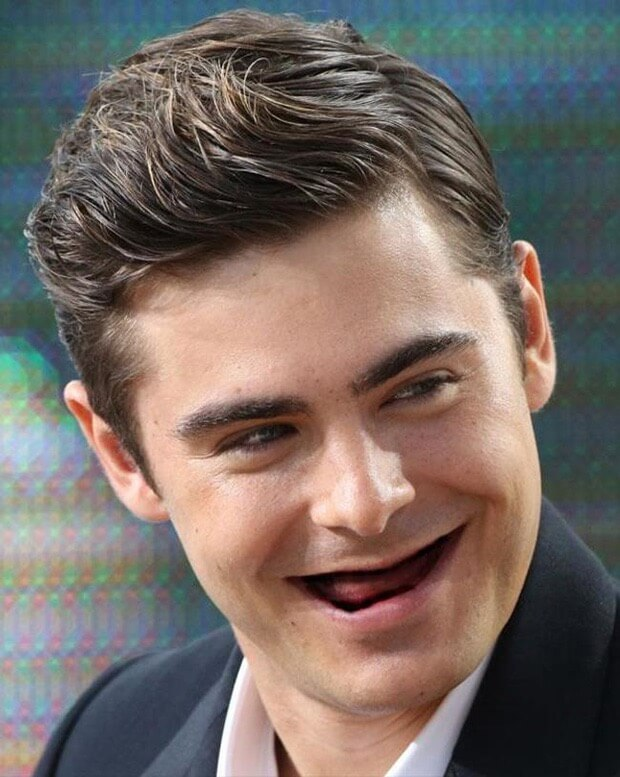 celebrities without teeth 5 (1)
