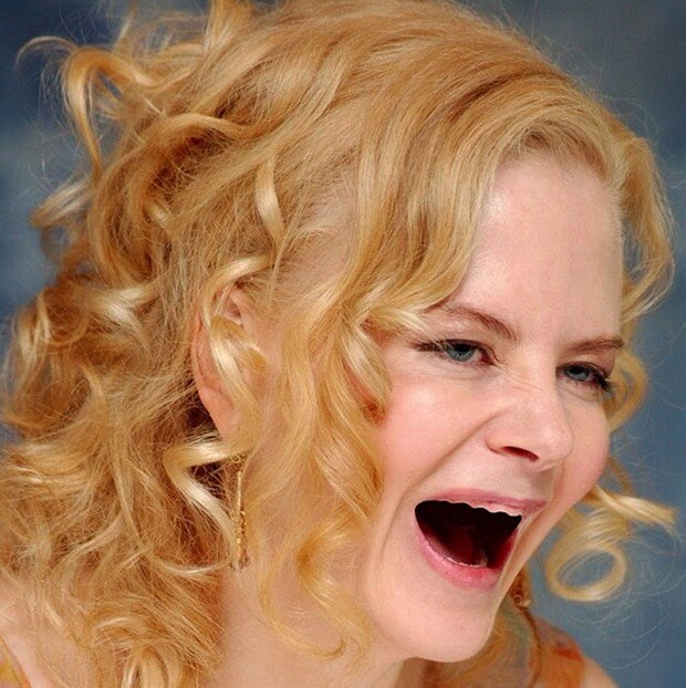 celebrities without teeth 6 (1)