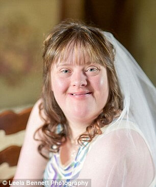 down syndrome couple magical wedding 6 (1)