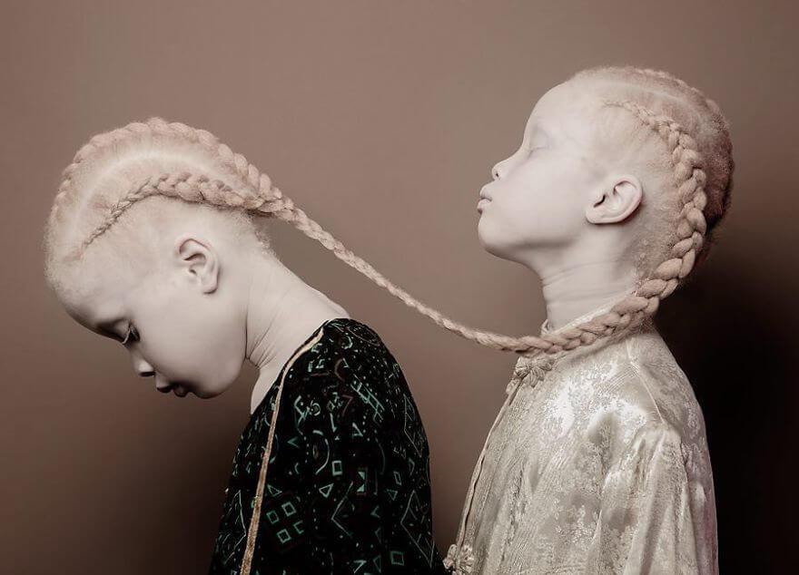 Lara and Mara albino models (1)