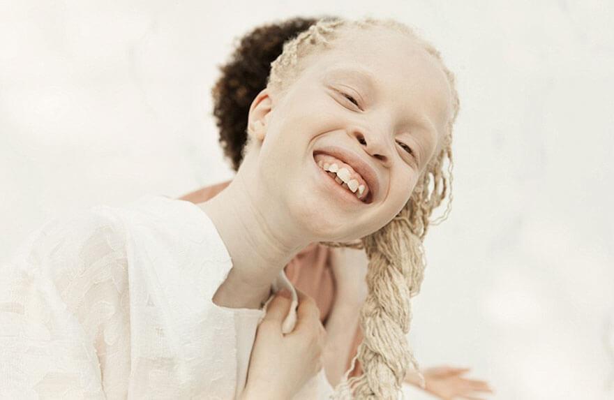 Lara and Mara albino models 10 (1)