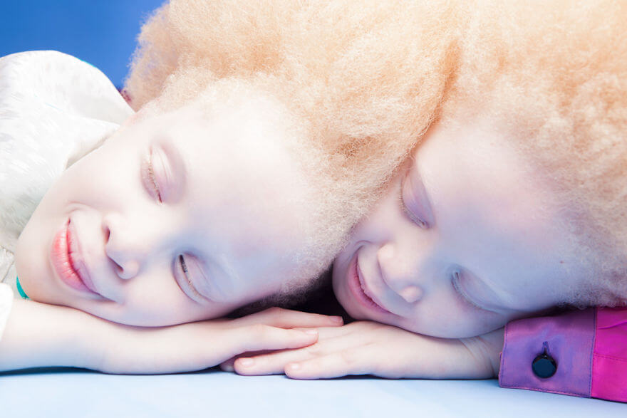 Lara and Mara albino models 2 (1)